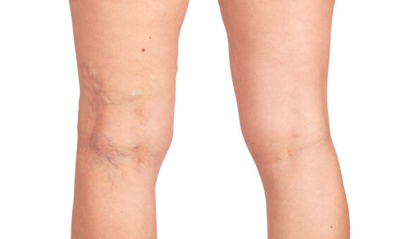 Imagem do Blog: Varizes: Dos Sintomas ao Tratamento